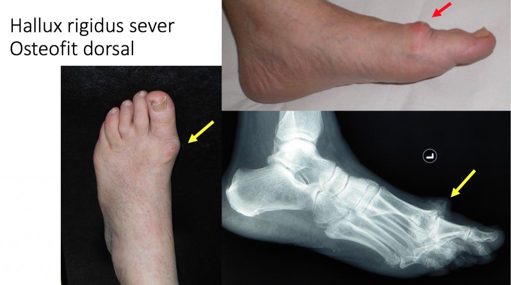 gimnastică în tratamentul artrozei umărului ce pastile pentru durere în articulațiile picioarelor