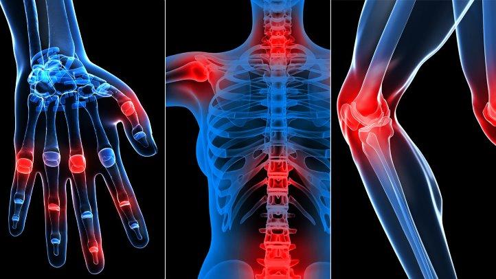 Rețetă Tratamentul cu artroză Wangi