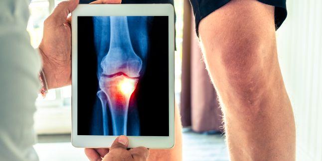 Entorsă în tratamentul articulației genunchiului