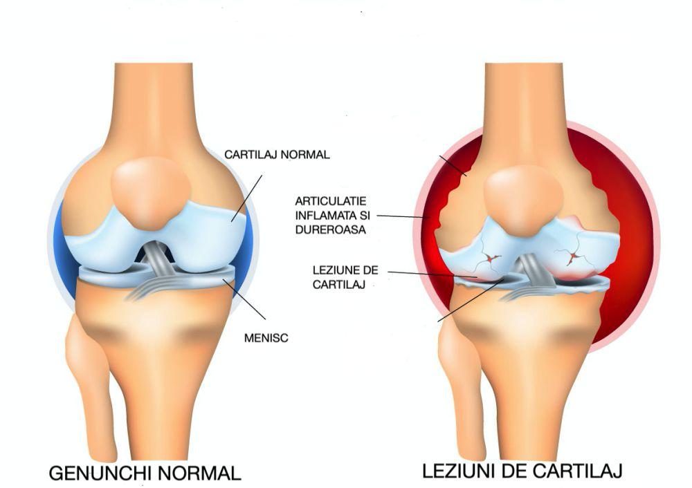 cum să restaurați medicamentele pentru cartilajele genunchiului pastile din articulații în genunchi
