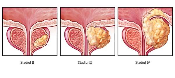 dureri articulare cu trombocitopenie