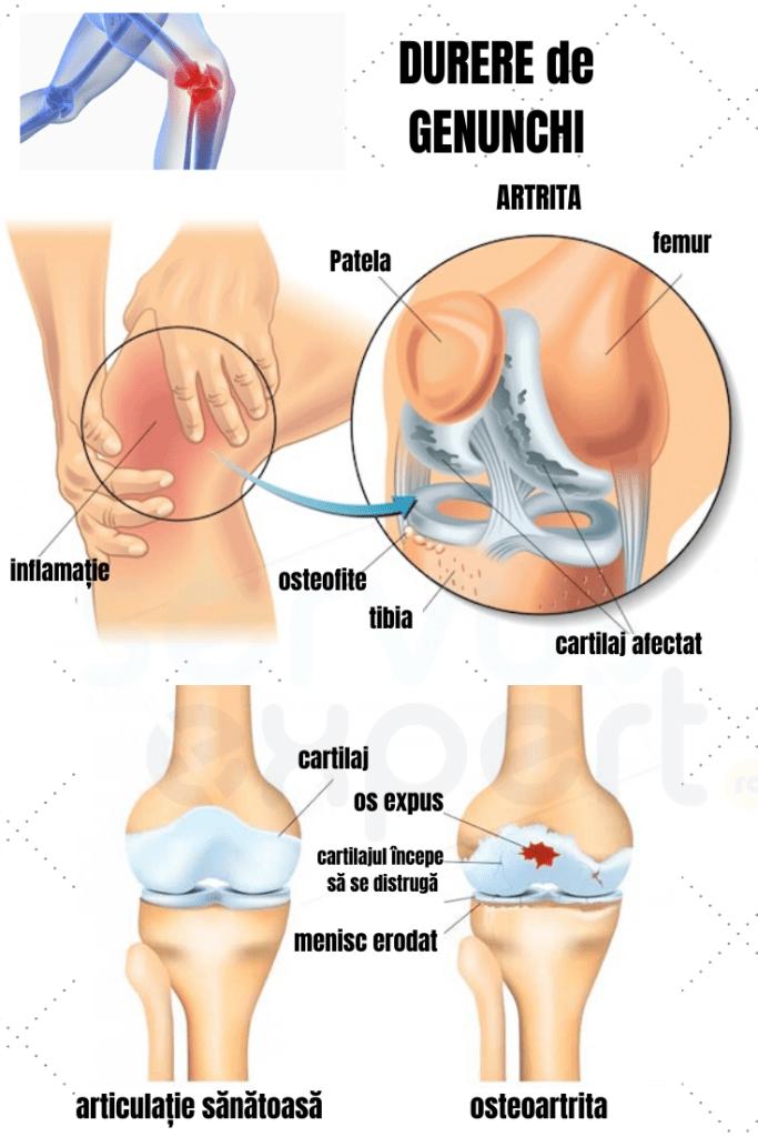 deteriorarea oaselor și a articulațiilor