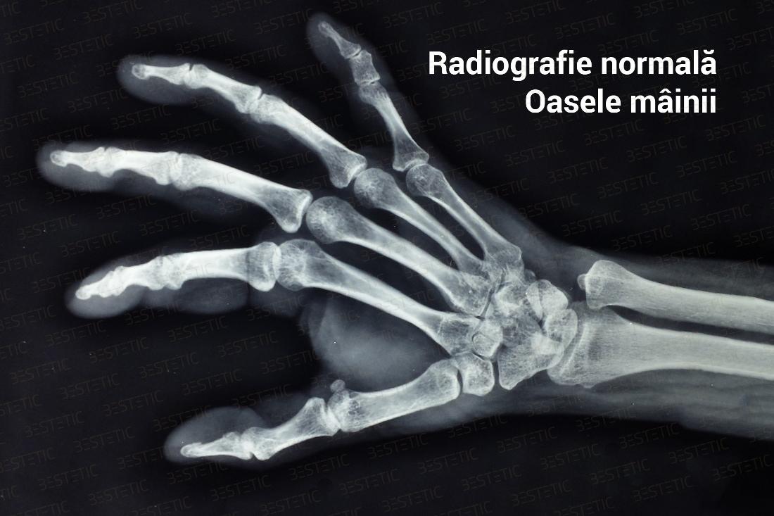 medicină artroză a articulațiilor de pe degete artroza artrita articulației umărului drept