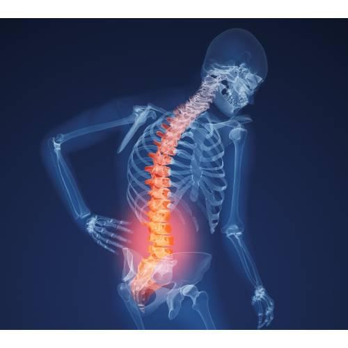 Deteriorarea oaselor și articulațiilor umane. B. Cartilajul