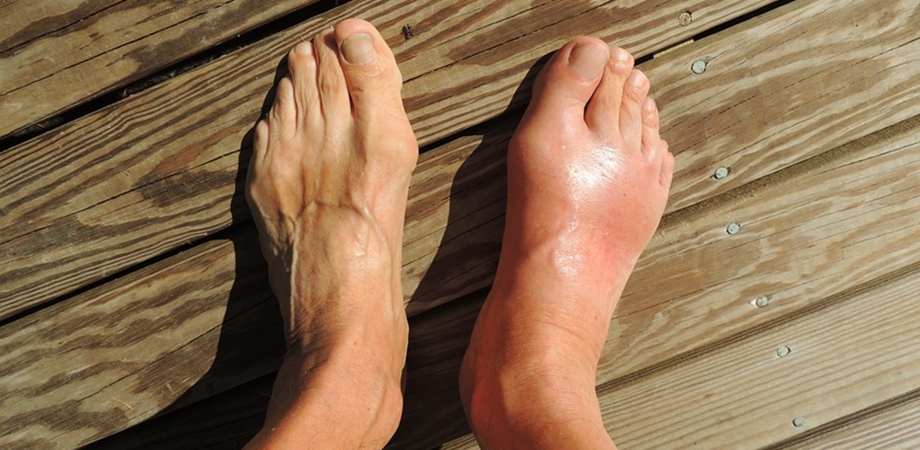 Guta: cauzele aparitiei, cum recunosti simptomele, ce tratament trebuie sa urmezi | infostraja.ro