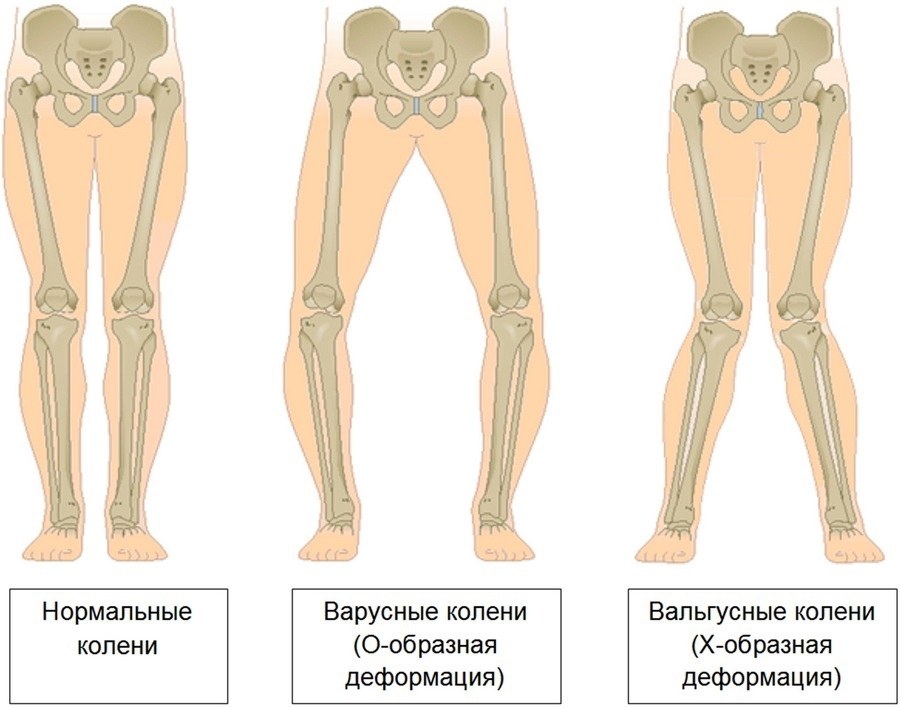 Boli ale țesuturilor moi ale articulației șoldului