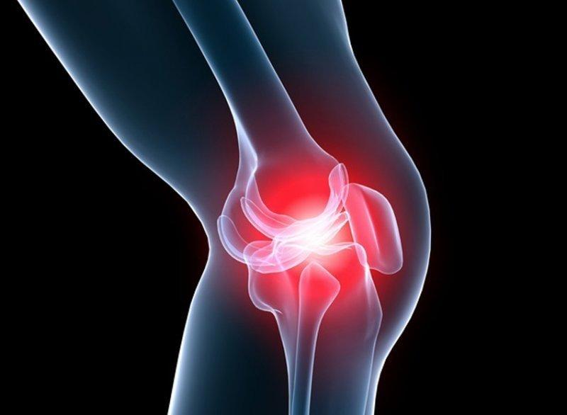 Este posibil să aburi cu artroza articulațiilor genunchiului