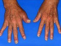 pentru a restabili ligamentele și articulațiile care