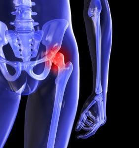boala articulației genunchiului care tratează dureri ascuțite la genunchi atunci când mergeți