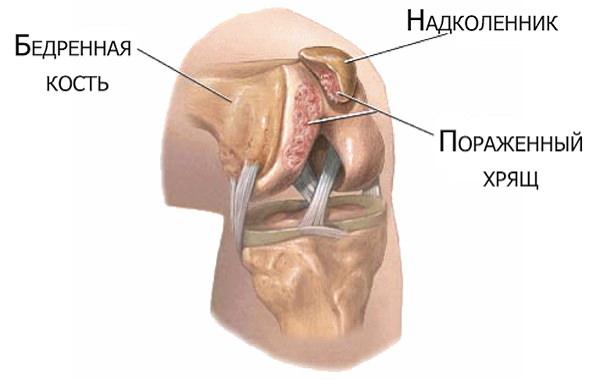 tratamentul osteocondropatiei genunchiului