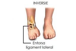 deteriorarea ligamentelor articulației gleznei de 1 grad