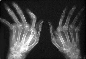boli ale articulațiilor mici ale piciorului