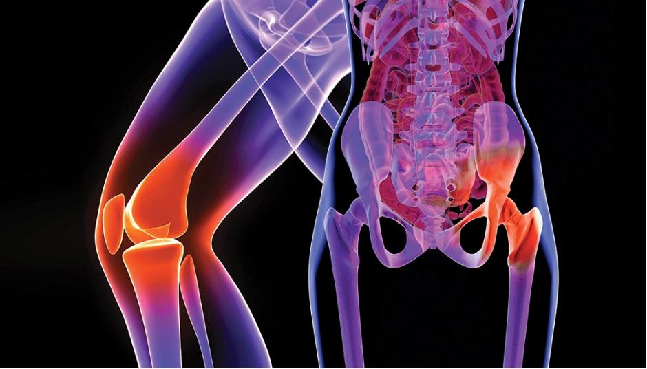 dureri articulare cauzele șoldului și tratamentul
