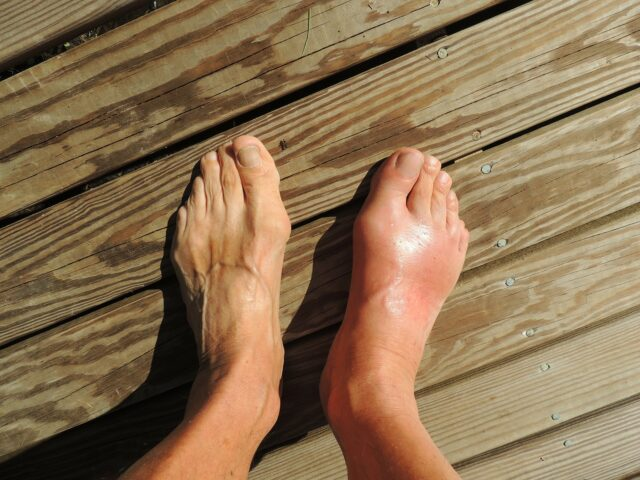 tratați articulațiile piciorului