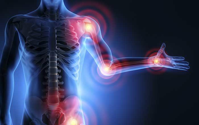 inflamația tratamentului articulației genunchiului cu dimexid