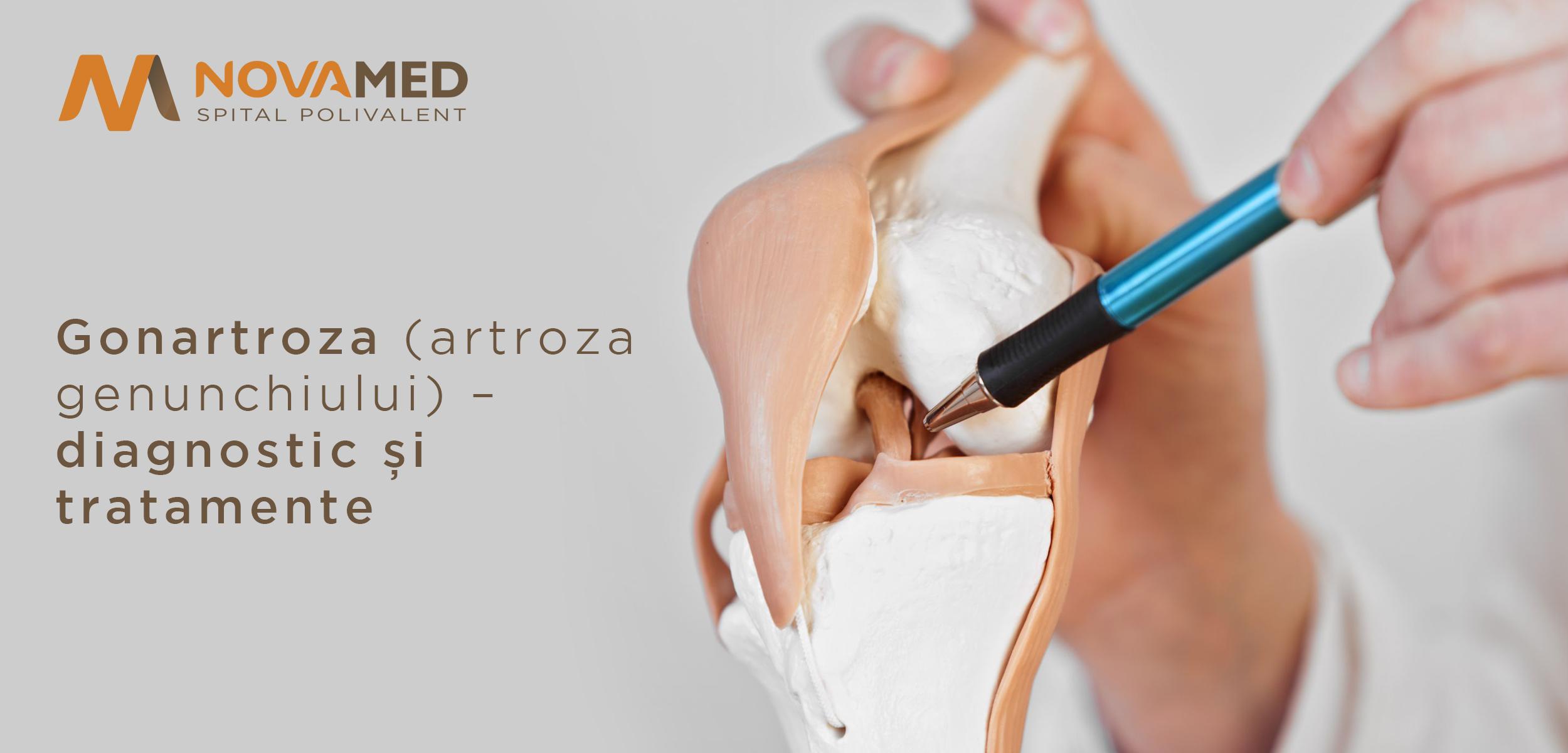artroza tratamentului injecțiilor la genunchi