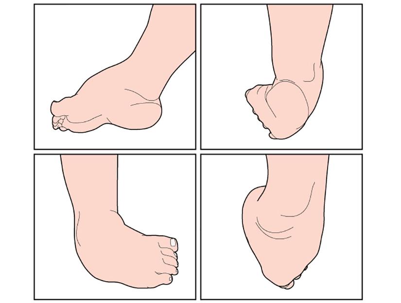 Cum să tratați articulațiile medicamentelor picioarelor