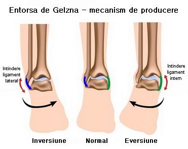 Genunchi dureri cu umflarea gleznei, generalitati Durere severă și umflare în articulația gleznei