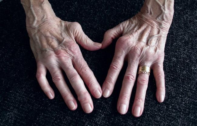 cum să amelioreze umflarea articulațiilor cu artrita reumatoidă