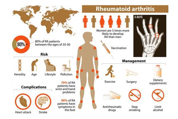 semne ale artritei reumatoide ale mâinilor