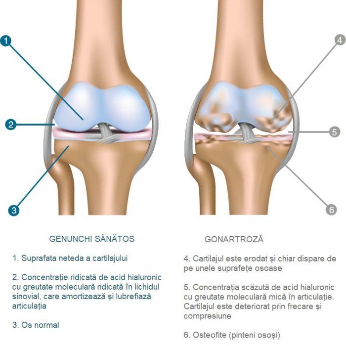artroza în tratamentul coloanei cervicale