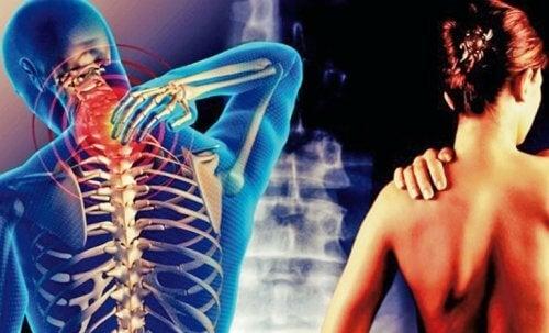 unguente de nevralgie la umăr 2 grad de artroză a genunchiului