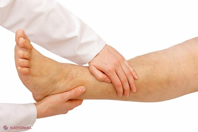 crăpătură în articulațiile picioarelor fără durere