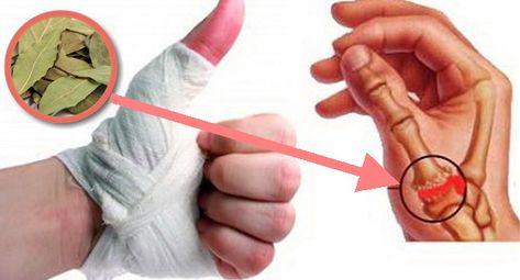 remediu miracol pentru durerile articulare
