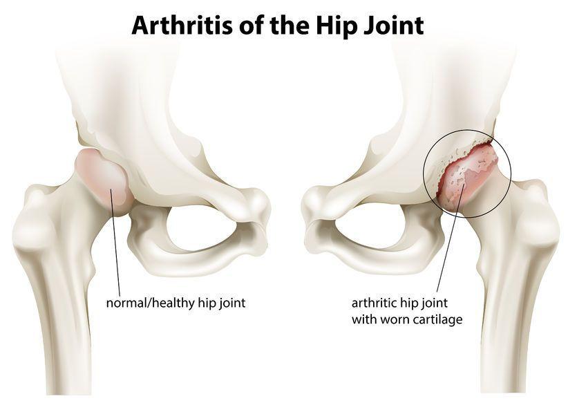 Artroza stadiul 3 al articulației șoldului