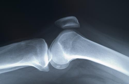 osteoporoza soldului cum se tratează deteriorarea ligamentelor tratamentului unguentului de gleznă