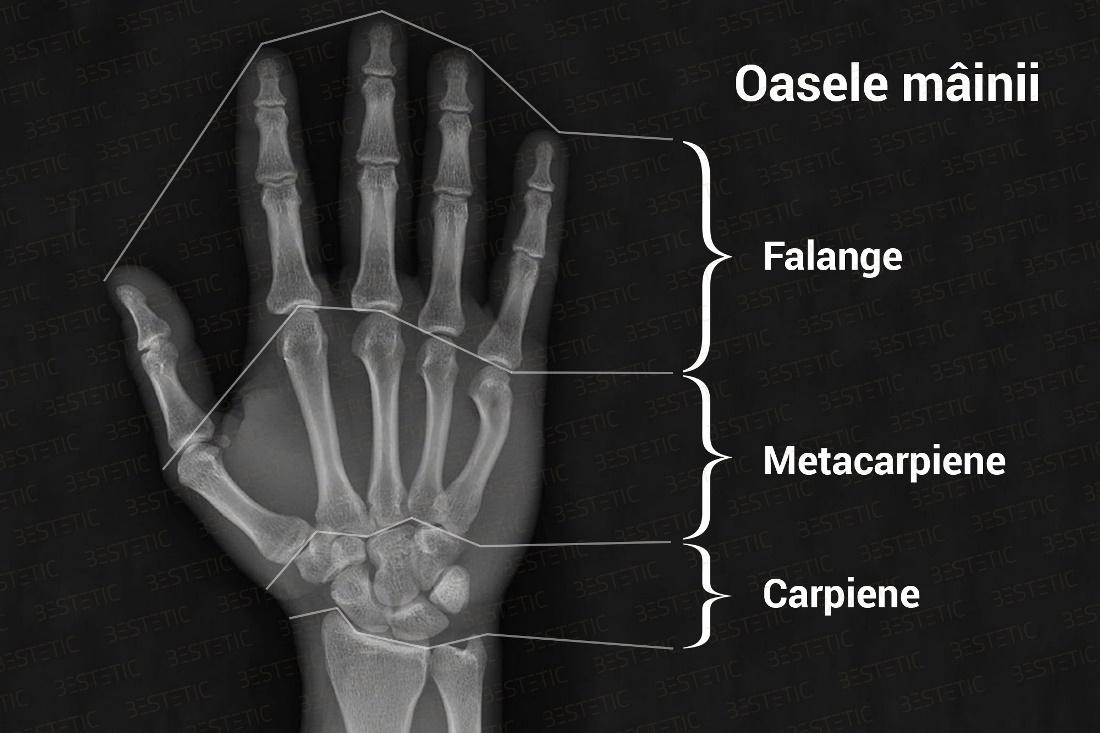 caz de fractură de încheietura mâinii