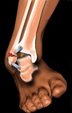 fisură în tratamentul articulației gleznei