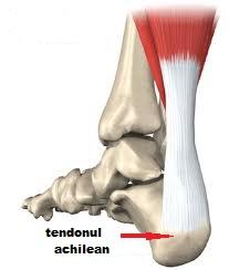 deteriorarea tendoanelor gleznei articulația brațului este crăpată și dureroasă