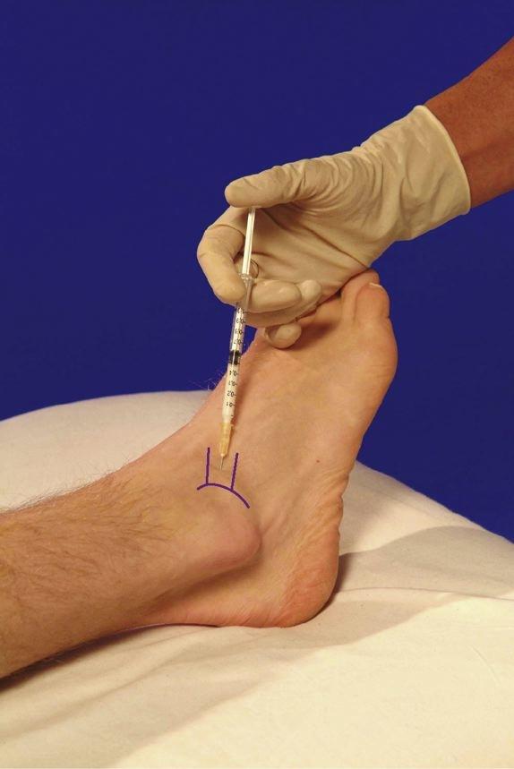 tratamentul articulației diabetului zahăr tratamentul artrozei genunchiului. forum