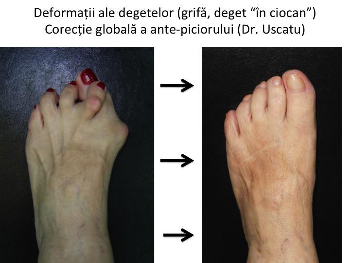 tratamentul poliartritei articulațiilor degetelor de la picioare