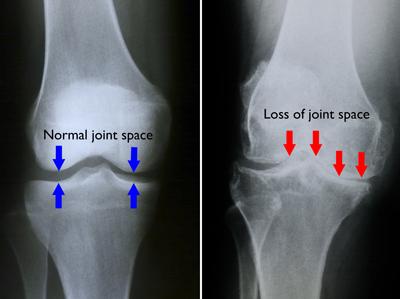 artroza simptomelor gonartrozei genunchiului dacă articulația genunchiului este foarte dureroasă