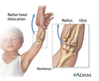 cum să tratezi durerea articulară cu cotul artroza mâinii ca tratată