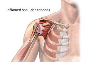 dureri severe la nivelul articulațiilor cotului și umărului