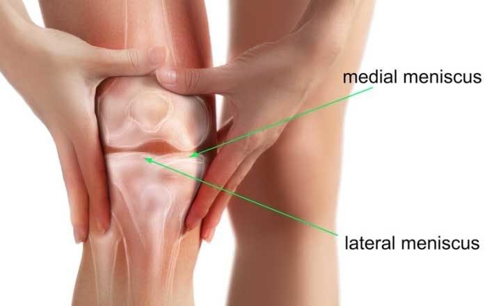 menisci rupt al tratamentului articulației genunchiului durere severă la nivelul articulației piciorului fără vătămare