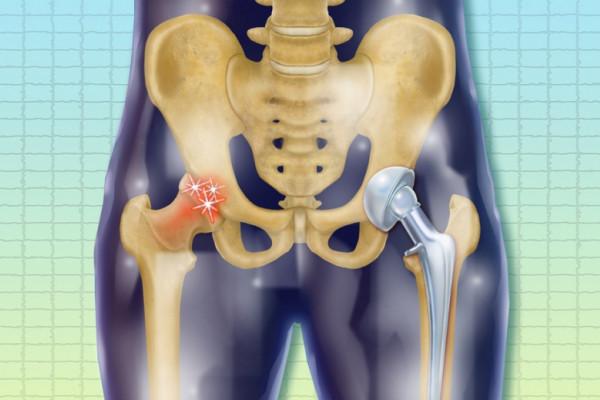 artroza articulației genunchiului don