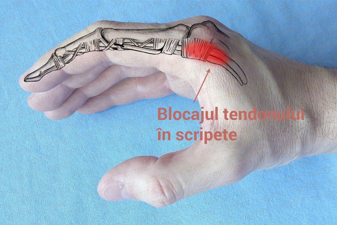 durere deget mijlociu mana si durere deget mijlociu picior | Forumul Medical ROmedic