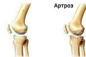 artroza gradului 2 al semnelor articulației genunchiului