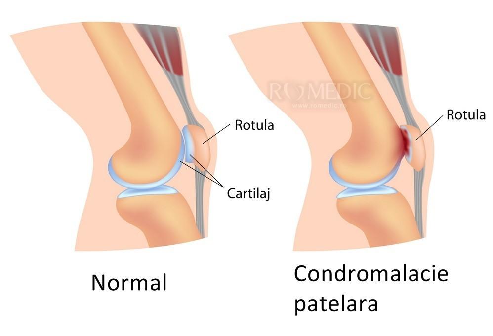 genunchiul a zburat din articulație tratament de artroză articulară injectabilă