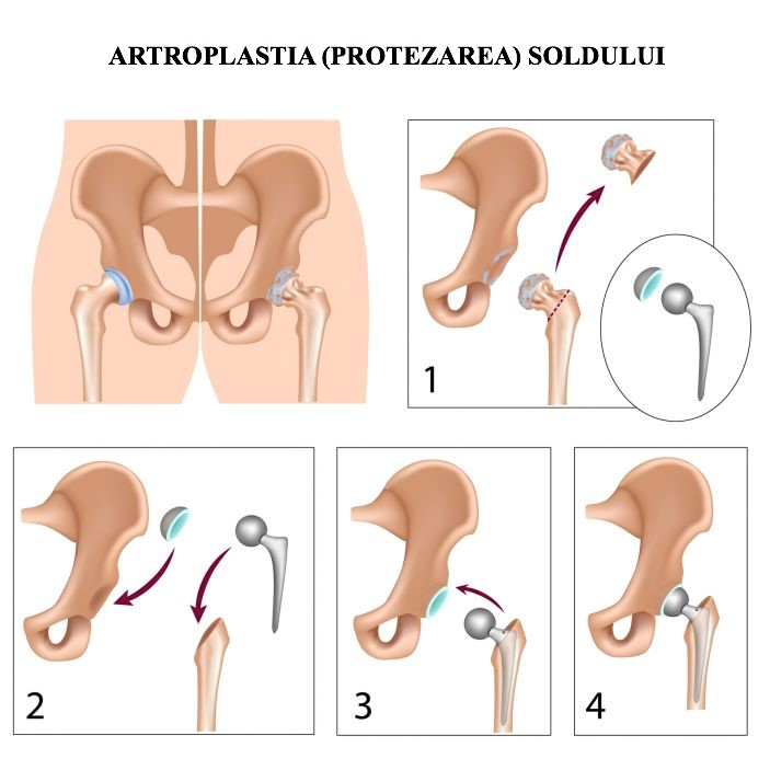 tratamentul cartilajului la șold