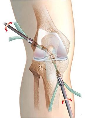 artroza șoldului provoacă simptome și tratament fistula pe articulație tratamentul său