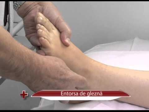 tratament de entorsă hamstring