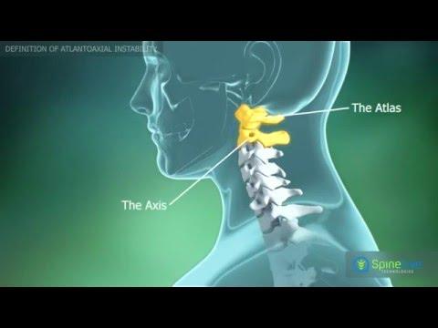 medicină pentru ortroză articulară