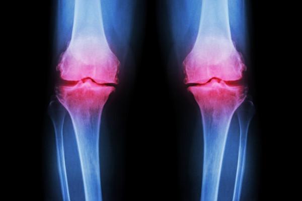 condroza simptomelor și tratamentului genunchiului
