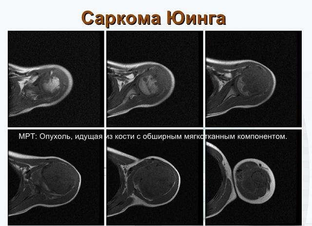 simptome de reumatism articular și tratament care pastile artroza de gradul doi al articulației gleznei