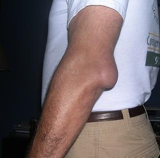 dureri de cot după bursită reumatolog dureri de articulații